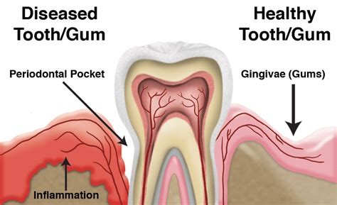 Gums Pulling Away From Teeth Home Remedy by The Foundation