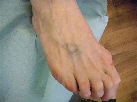 tattoo removal on foot lucky cat tattoo glasgow laser tattoo removal