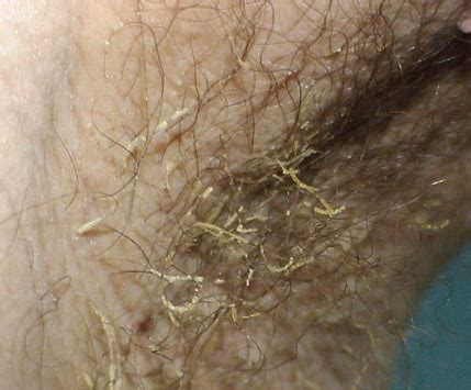 mons pubis hair trichomycosis pubis treatment pictures photos