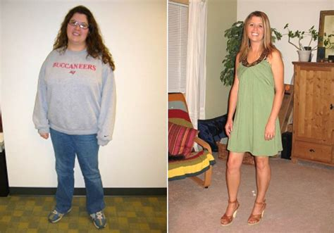 3 weight loss surgeries desperate to qualify for weight loss surgery some pile on