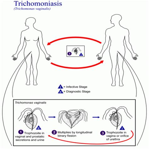 can you get trichomoniasis from a toilet seat symptoms of trichomoniasis s health articles