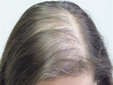 new treatment for alopecia 2014 frontal fibrosing alopecia treatment