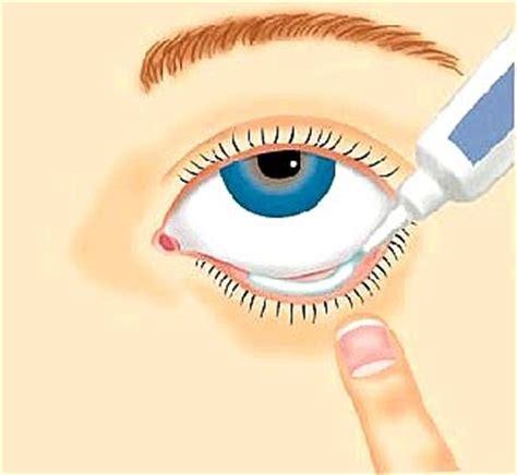Zovirax Salep Mata image gallery eye ointment