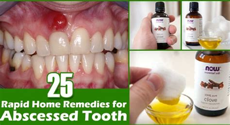 best home remedies for abscessed tooth health abc