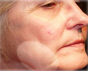 sagging jowls treatments for sagging jowls jowl reduction jowl reduction