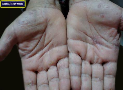 syphilis rash on hands secondary syphilis related keywords secondary syphilis