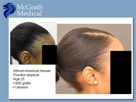 best hairstyles dor traction alopecia traction alopecia hair transplant in austin tx