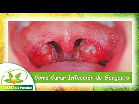 remedios caseros para curar infeccion vajinal fotos como curar infeccion de garganta tips y remedios caseros
