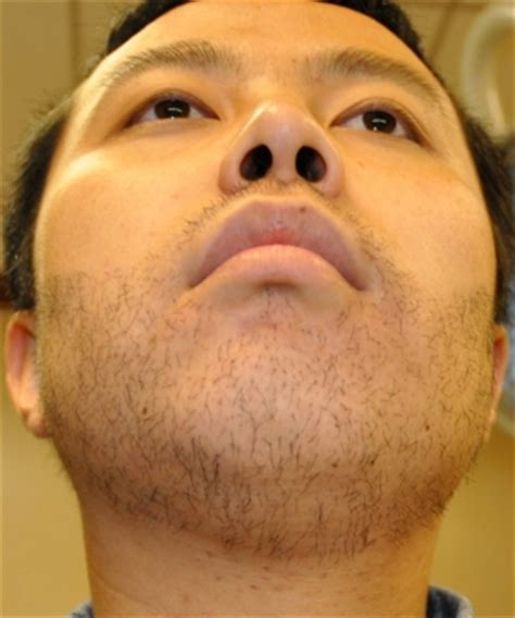 hair transplant center nyc hair transplantations nyc facial hair transplant before after pics hair