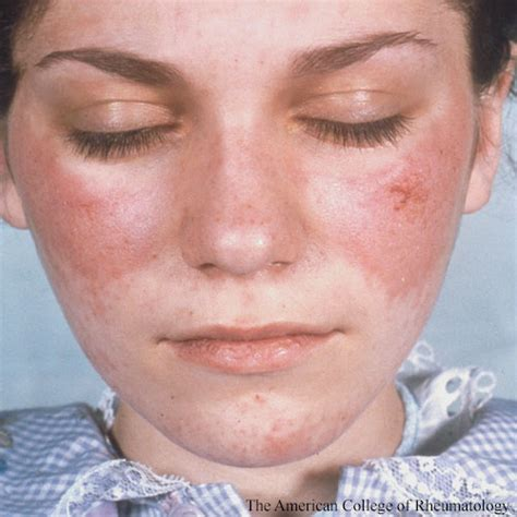 understanding sle associated skin injury may open the door