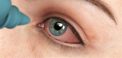 eye infection symptoms early detection of eye diseases eye