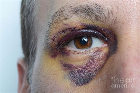 black eyes 8 best images about makeup wounds black eye on