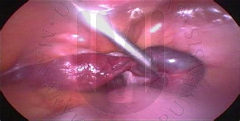 livid color gynecology archive of endoscopy and ultrasound images