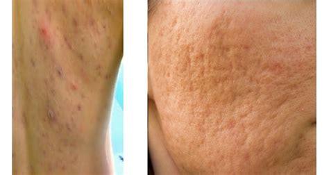 Obat Gatal Gatal Eksim obat penyakit kulit gatal jerawat herpes eksim alergi