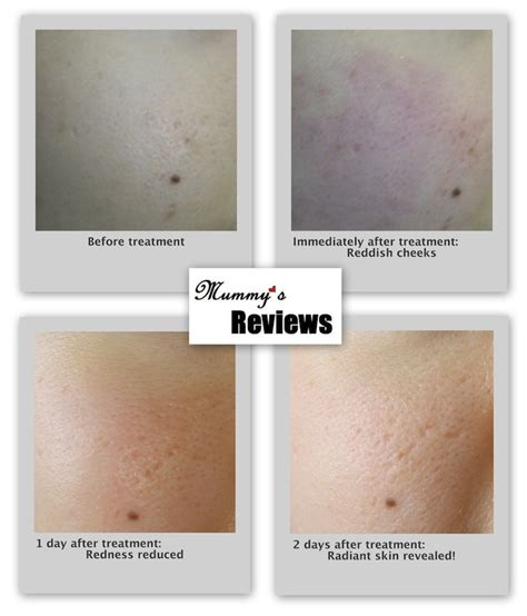 the laser treatment clinic specialists in laser skin care review the aesthetics clinic q switch erbium laser