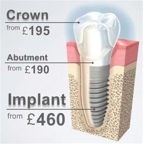 comfort dental gold plan pricing dental implant hungary from 460 gbp 585 eur cheap teeth