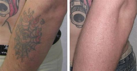 surgical tattoo removal before and after laser surgery laser surgery laser removed tattoos before