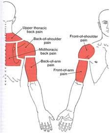 trigger point section diagram for the back shoulder