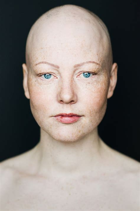More Pics Of Going Bald by Best 25 Bald Ideas On Freckle