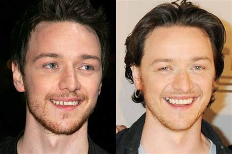 james mcavoy teeth james mcavoy got his teeth fixed 9celebrity