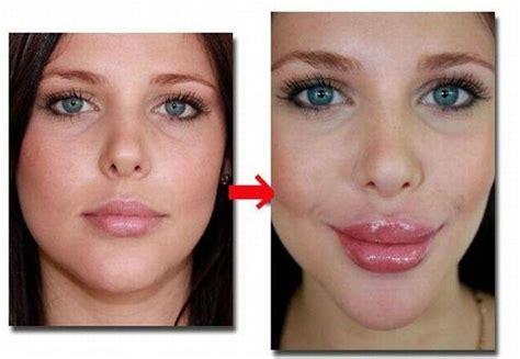 My Top 5 Lip Plumpers by Best Lip Plumper Filler Enlargement Enlarger Derma