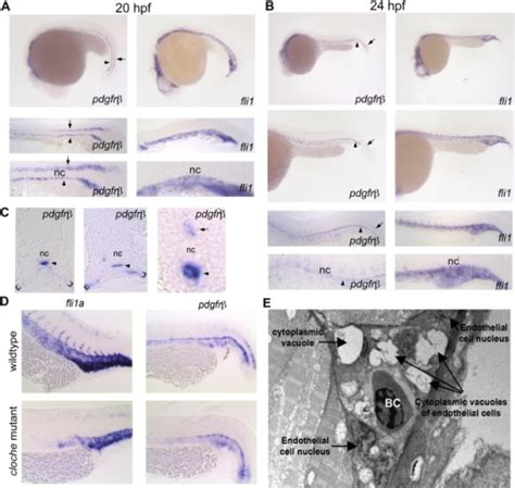 copyright section 106 pdgfrβ2 expression in the developing zebrafish in situ