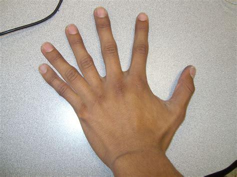 to finger p5 6 fingered hand mruiz192