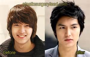 Lee min ho plastic surgery plastic surgery feed