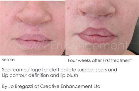 medical tattooing for scars scar camouflage for cleft palate scar by jo bregazzi jo