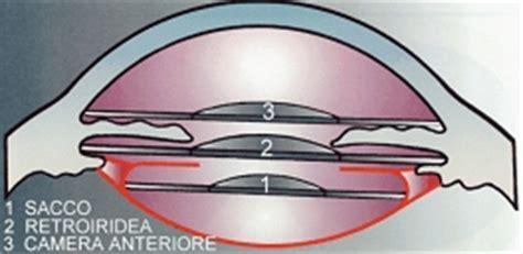 emorragia oculare interna chirurgia refrattiva laser di miopia ipermetropia