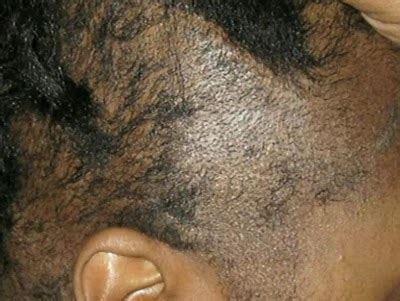 Hair Dryer Effects On Scalp how to heal chemical burns from relaxers vissa studios