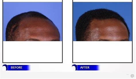 Types Of Hair Transplant by Are Hair Transplants Different For Black