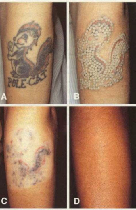 cost to remove small tattoo 7 best dermabrasion removal images on