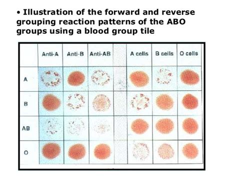 pattern of typing test inheritance and genetic of blood group