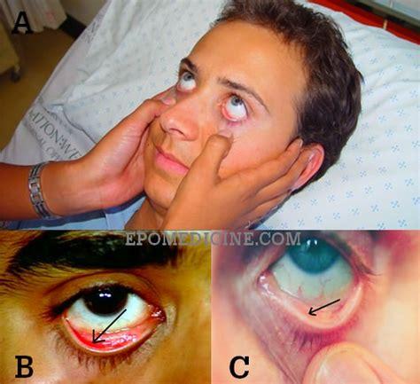 anemia skin color pallor epomedicine