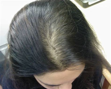 women balding on crown female hair loss pattern
