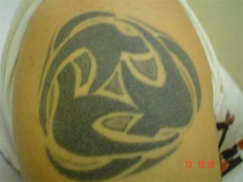 laser tattoo removal birmingham removal birmingham ink studio