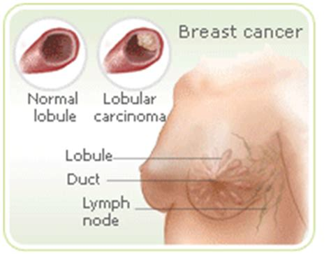 how menopause can happen with breast cancer treatments hormone replacement therapy and its link with breast cancer