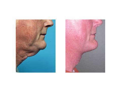 explore plastic surgery dr barry eppley arm lift neck scarring archives