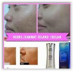 Pelembab Squalane produk kecantikan yang bagus untuk kulit berjerawat toko