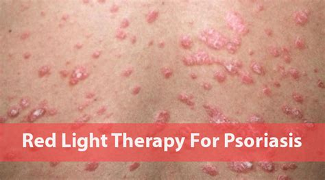 light therapy for psoriasis benefits of red light therapy