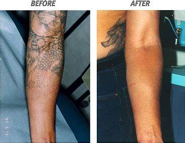 tattoo removal stages removal service fast and successful treatment