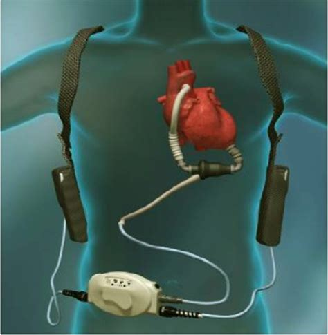 What Are Ventricular Assist Devices? (VADs) | Cardiac ... Lvad Clinic