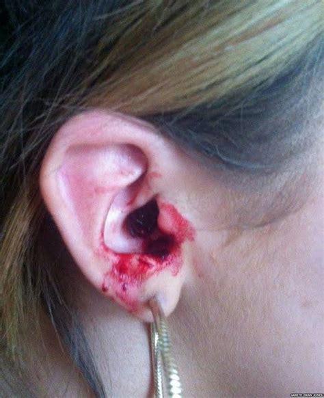 ear bleeding image gallery ears bleeding