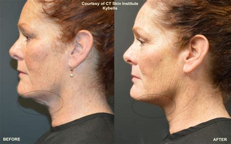 kybella archives connecticut skin institute