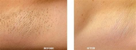 tumblr pubic trimming any before and after photos re pubic hair removal revitol