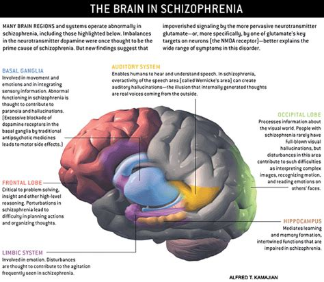 Brain Detox Symptoms by Schizophrenia And The Risks Of Substance Abuse