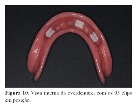 overdenture barra clip superior overdenture in the rehabilitation of toothless patient