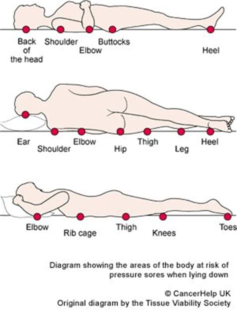 pressure ulcer points diagram preventing pressure ulcers causes symptoms treatment