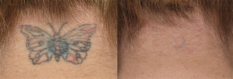 picosure tattoo removal before and after courtesy of r geronemus md post 6 tx cynosure picosure
